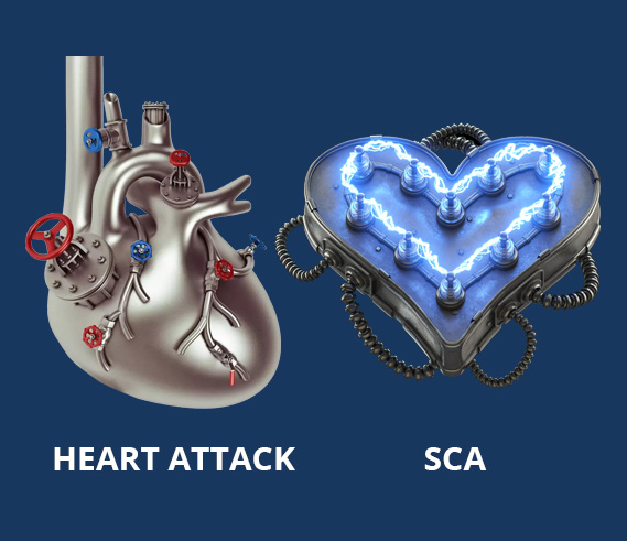HEART ATTACK VS SCA